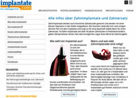implantate.com